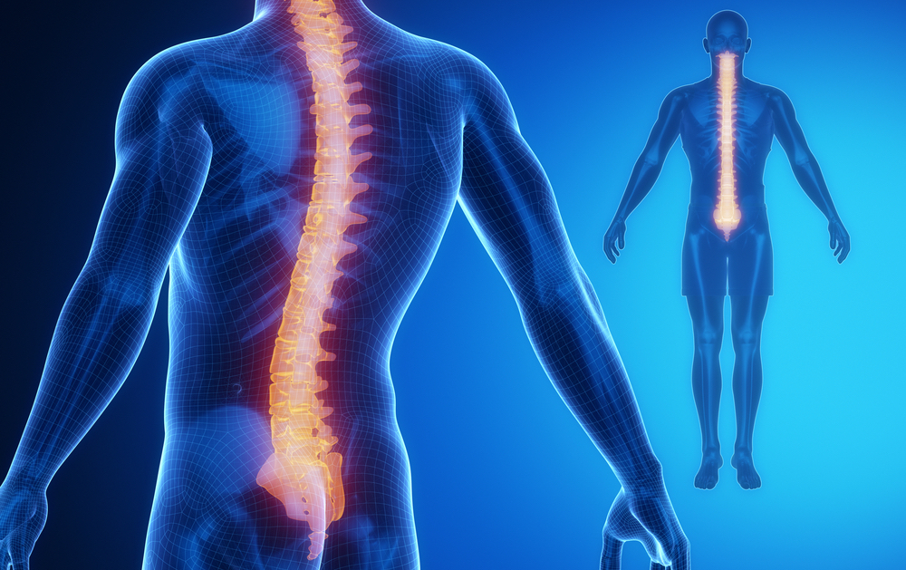 Paraplegia and spinal cord injury drwluk sciox Images