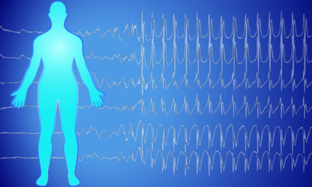 Frequency, Intensity, and Waveform