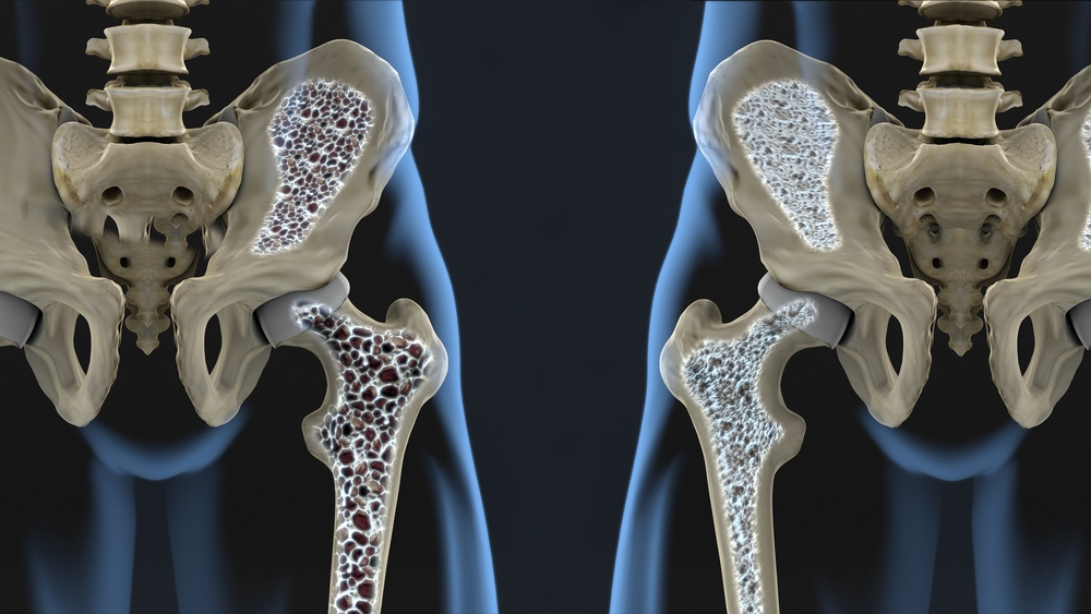 Osteoporosis and Osteopenia could see benefits from PEMFs