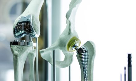 Joint Replacements and Implanted Prosthetics