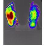Effect of PEMFs on improving blood flow