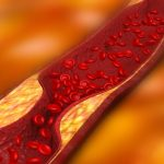 PEMFs reduce progression of arteriosclerosis