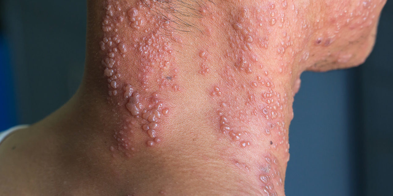 Pemf Therapy For Shingles And Postherpetic Neuralgia Phn