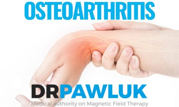 What dosage do you use for Osteoarthritis?